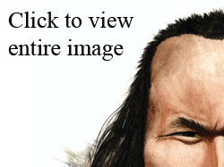 ancient hair loss